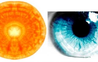 Carrott-Eyeball1